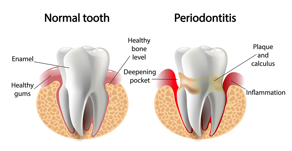 Healthy-smile-dental-Underood-periodontitis-teeth-decay-Calamvale