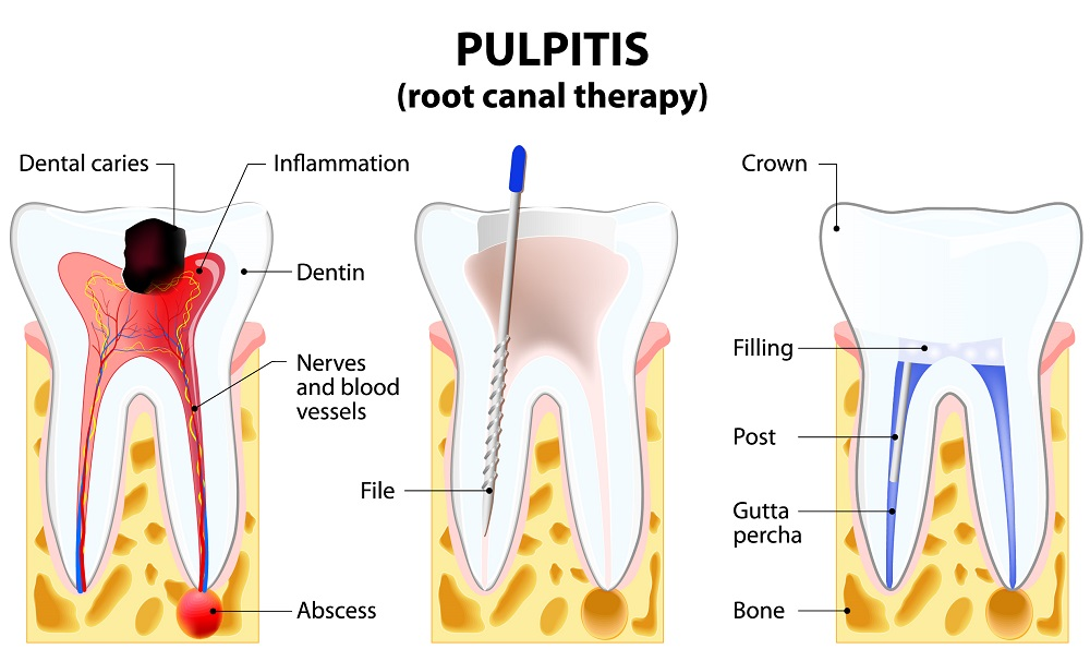 Healthy-smile-dental-root-canal-treatment