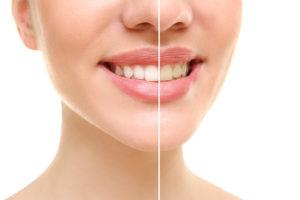 Healthy-smile-dental-teeth-whitening-underwood-Calamvale-teeth-whitening