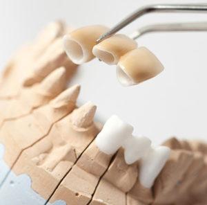 bHealthy-smile-dental-bridge-Underwood-dentist-Calamvale-dentist