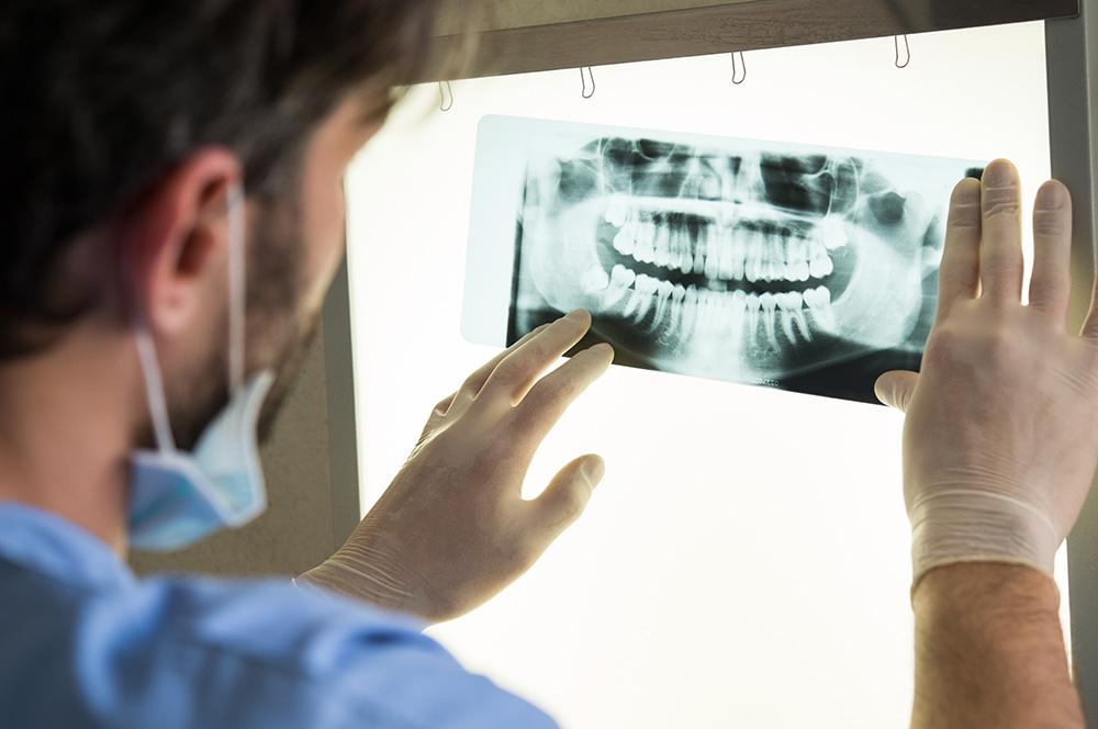 healthy-smile-dental-Calamvale-wisdom-teeth-underwood