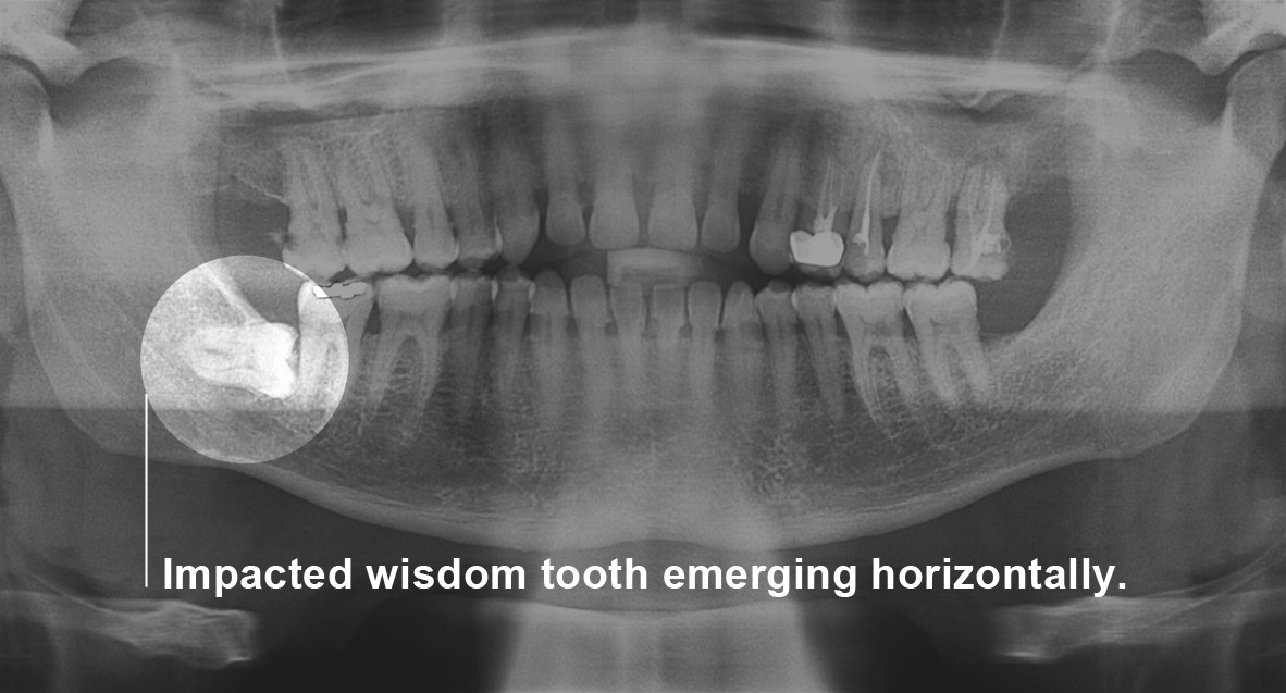 Healthy-Smile-dental-wisdom-teeth-removal-x-ray