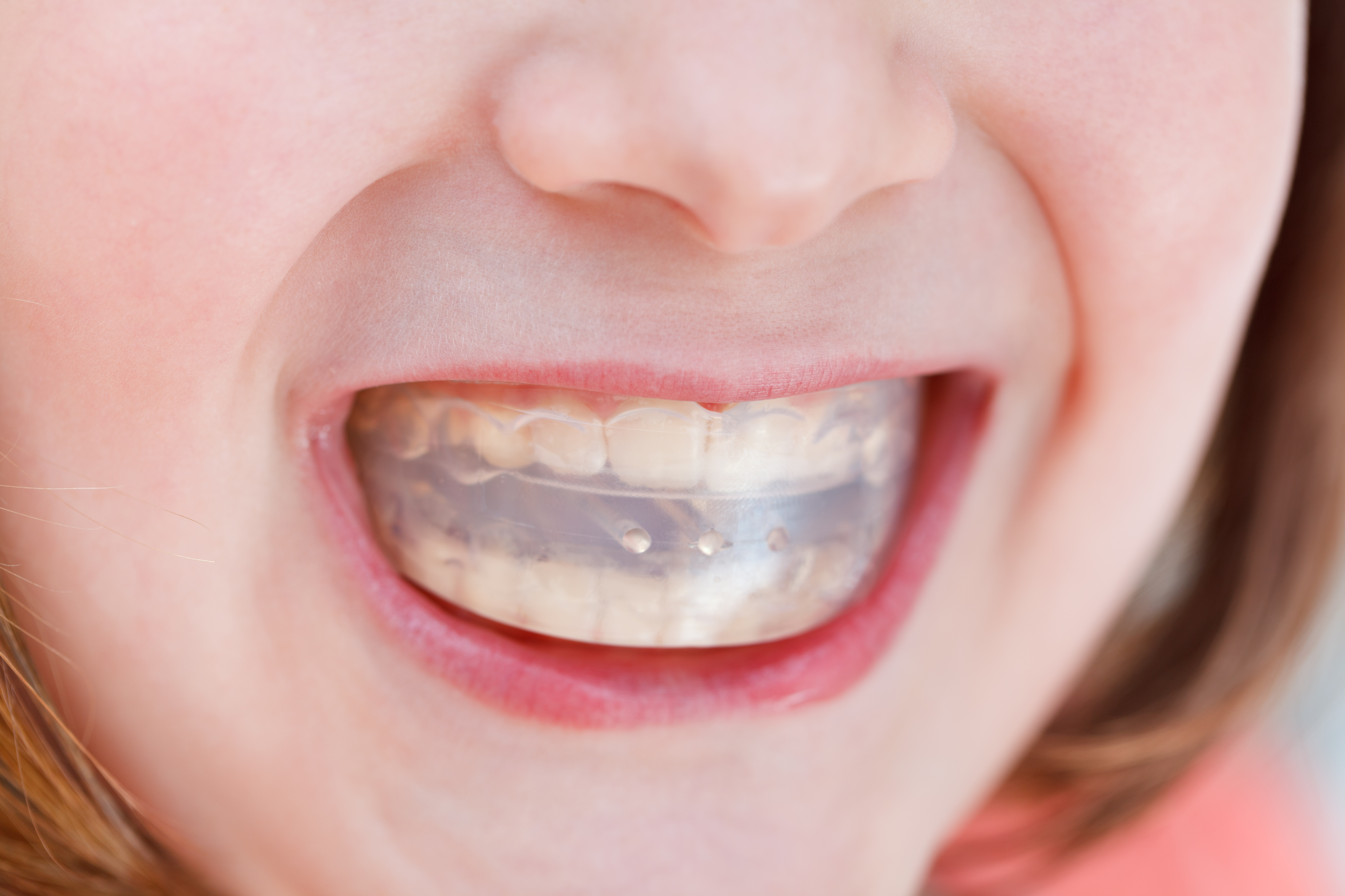 healthy-smile-dental-mouth-guard