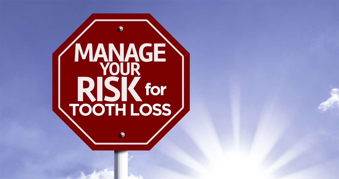 Are you at risk of tooth loss?