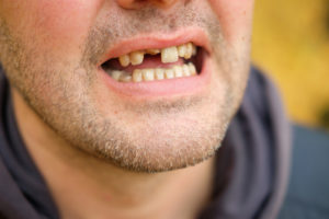 risk-of-missing-tooth-Browns-plains-dentist