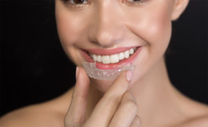 Brisbane-teeth-alignment-Clear-aligners