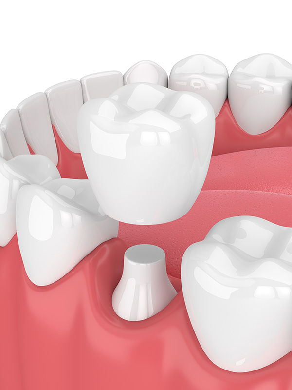 Porcelain Crowns – the perfect solution for damaged teeth