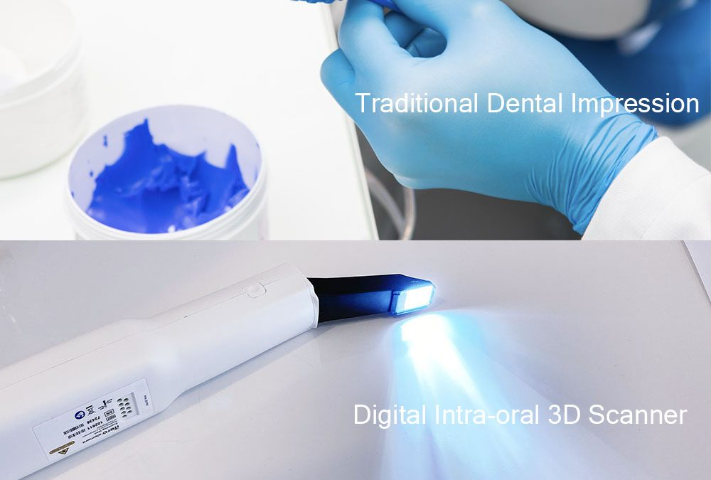 The top benefits of digital intraoral scanners