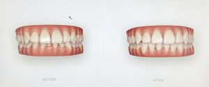 Healthy-Smile-dental-3D-scanner-teeth
