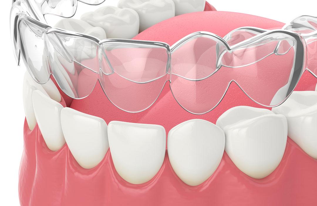 Healthy-smile-dental-invisalign-removal-B